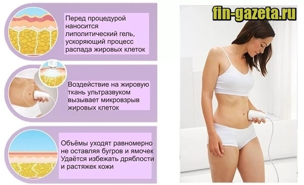 изображение Кавитация – что это такое в косметологии
